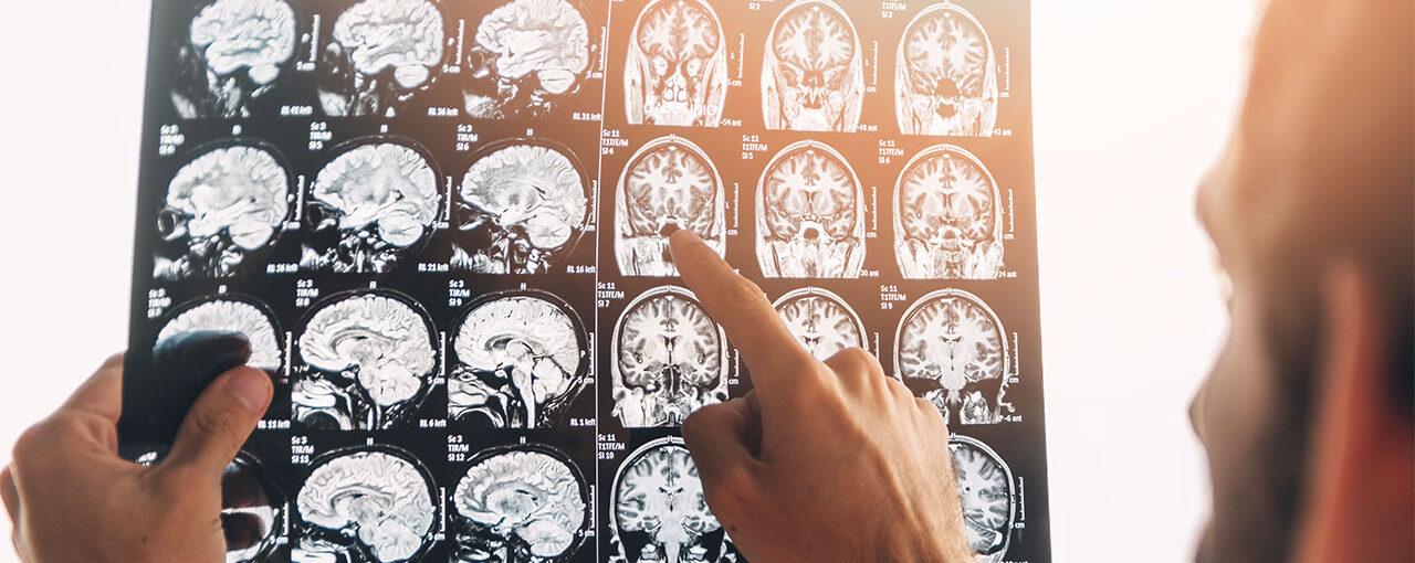 Concussion – Diagnosis and Treatment